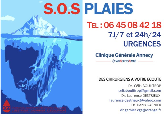 SOS PLAIES